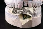 Стоматолог-мошенник обманул 20 человек почти на миллион рублей